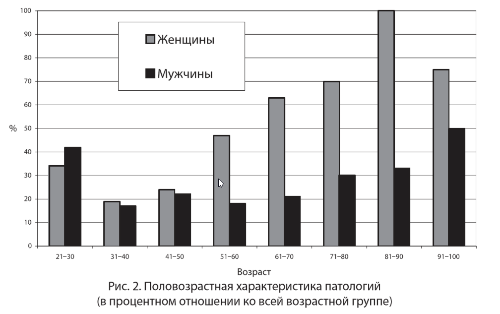Статистика выявления остеопороза.