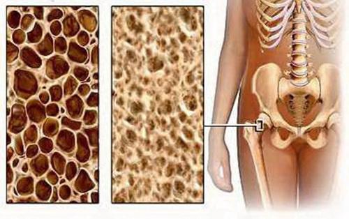 Препарат Остео Комплекс станет важным звеном в цепочки лечения остеопороза и переломов, и позволит как можно быстрее вернуться к нормальной жизни.