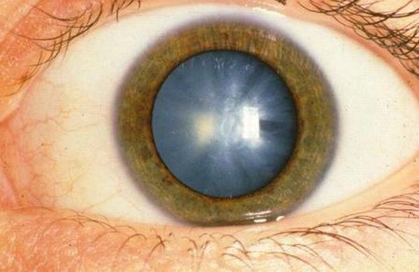 Лечение катаракты требуется в обязательном порядке, иначе полная слепота гарантирована.