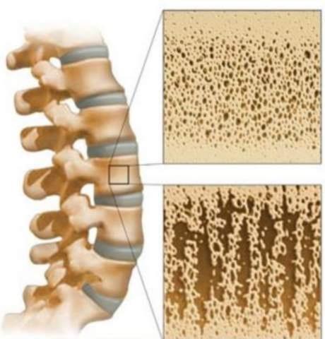 Это очень полезное средство для профилактики и лечения остеопороза народными средствами