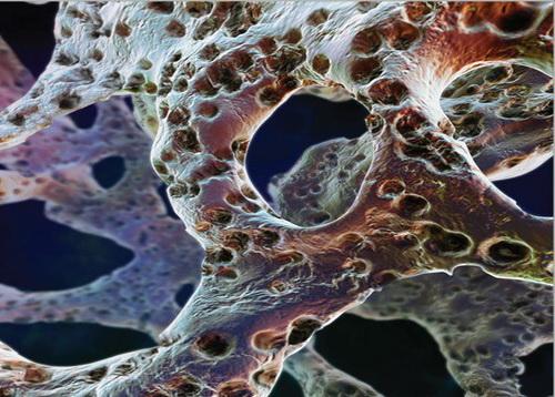Применение препарата Остео Комплекс имеет в составе их необходимую суточную норму и станет отличным средством в профилактике и лечении остеопороза.