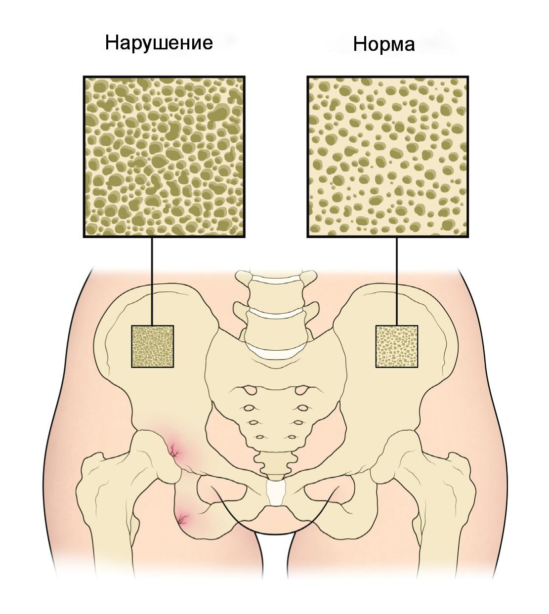 Что делать если у вас остеопороз?