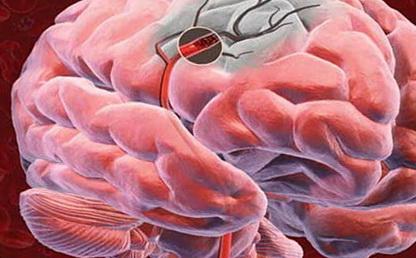 Симптомы и причины нарушения мозгового кровообращения