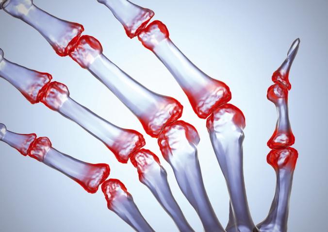 Болезнь - ревматоидный артрит