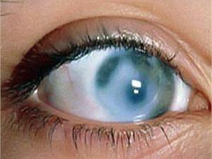 Некоторые формы болезни глаукомы, которые считаются наиболее опасными, могут ничем себя не проявлять, развиваться несколько лет, прогрессировать совершенно безболезненно и бессимптомно.