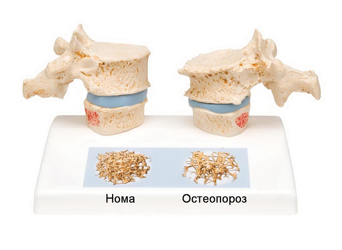 Как лечить остеопороз коллодными препаратами?