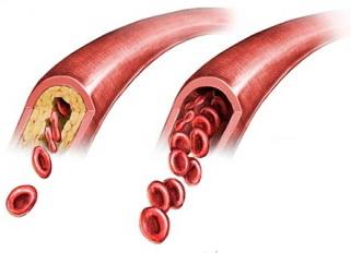 Причины возникновения атеросклероза артерий