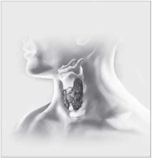 риск развития заболеваний ЩЖ при йоддефиците