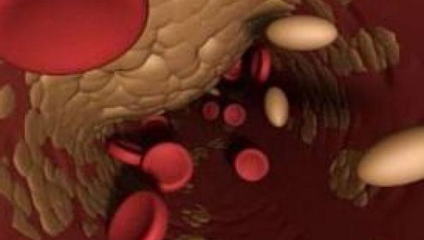 Последствия атеросклероза артерий